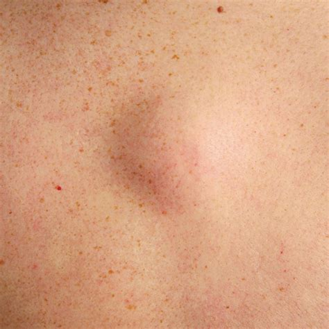 A Guide To Raised Bumps On Your Skin - Red Moles, Brown
