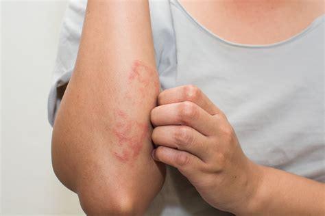 Measles Rash