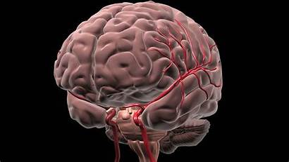 Brain Deep Blood Stroke Bleed Hemorrhage Patient