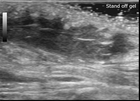 pilonidal cyst ultrasound pilonidal sinus intergluteal image radiopaedia org