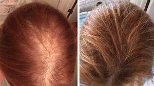 Irestore Laser Hair Growth System  U2013 Priomed International Ltd