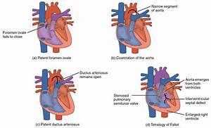 19 1 Heart Anatomy  U2013 Anatomy And Physiology
