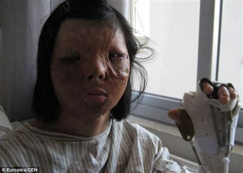 китайские врачи сделали новое лицо девушке из ее груди