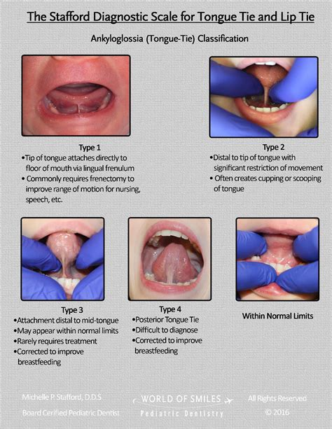 Diagnostic Scale For Lip And Tongue Tie Pediatric