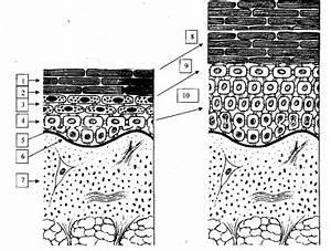 Лечение псориаза асд фракция 2 3