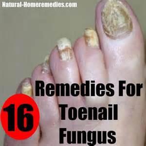 Home Remedy Toenail Nail Fungus Treatment