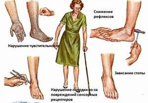 Эффективное средство от боли в пояснице и суставах