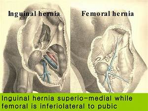 Diagram  Diagram Of Femoral Hernia Full Version Hd