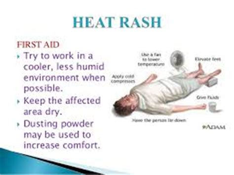 First Aid  Heat Rash. Remote Network Monitoring Services. Nursing Home Insurance Coverage. Meaningful Use Registration Pmp Online Class. How To Get Free Credit Report And Score. Create Personalized Books Locksmith St Louis. Product Development Process Flow. Security Companies In New York. Liposuction Tampa Florida Teleflex Everett Ma