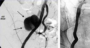 Post Transplantectomy Pseudoaneurysm  Arrows  Of The