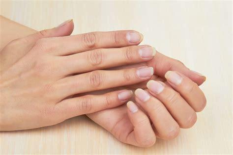 rheuma fingergelenk geschwollen geschwollene finger