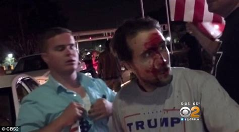 Donald Trump supporter who was beaten at California rally ...