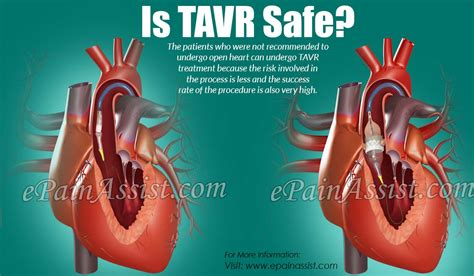 tavr transcatheter aortic valve replacement safe