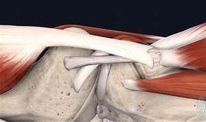 Webinar  Musculoskeletal Ultrasound Imaging