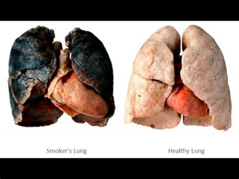 Cigarette Smoking Effects On Lungs