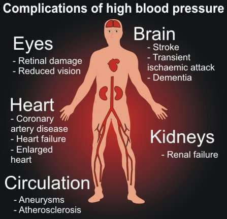 """Hypertension The """"silent Killer"""". Network Infrastructure Security. Images Of Thank You Cards Locksmith In Austin. Professional Schools In Usa Jaguar Xf Price. What State Is Notre Dame University In. Cheapest Commercial Vehicle Insurance. Car Insurance Quotes Allstate. Plumbers In Fort Lauderdale Army Acap Online. Bmi For Bariatric Surgery Silverbell Eye Care"""