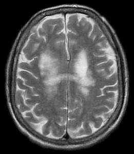 Progressive Multifocal Leukoencephalopathy Histology