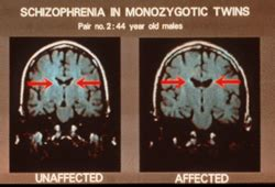 ventricular brain ratio wikipedia