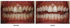 Tooth Whitening   Brighouse Dentist Serving Halifax ...