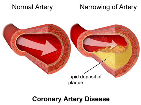 Coronary Heart Disease Causes Symptoms And Treatment