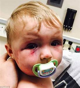 Father of baby who was bashed by mother speaks of injuries ...