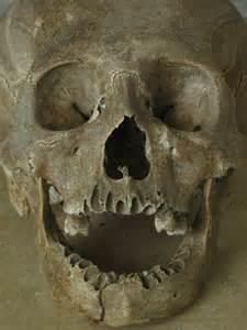 Black Death Bubonic Plague Mass Graves