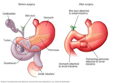 whipple procedure mayo clinic
