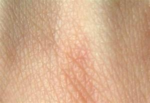 Makropoulos  Skin Words