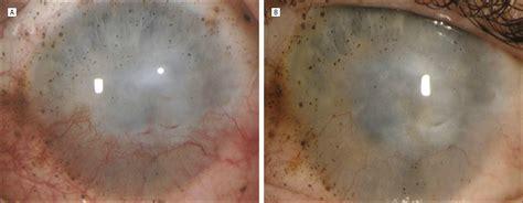 topical bevacizumab therapy  corneal neovascularization