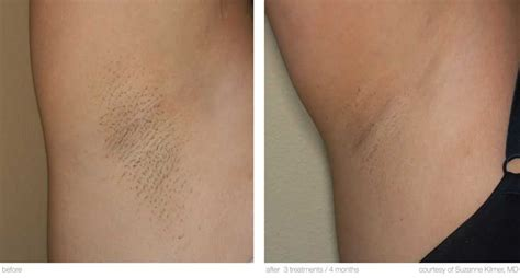 Hair Laser Treatments Pictures Photos