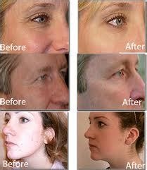 led light therapy before and after light therapy led light emitting diode jamiesesthetics