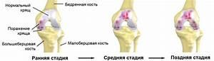 Артроз коленного сустава лечение донна