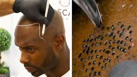 Hair Loss Worse With Rogaine