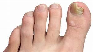 Как вылечить грибок на ногтях ног в дом условиях