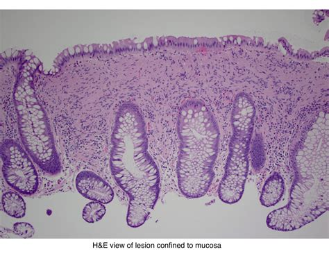 Pathology Outlines - Mucosal Schwann cell hamartoma