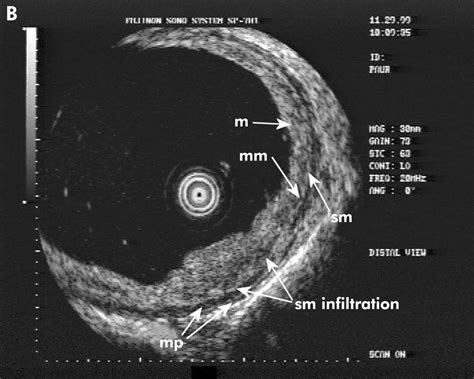 accuracy  staging  early oesophageal cancer  high
