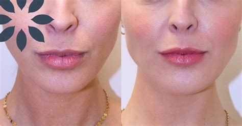 chin augmentation  dermal filler