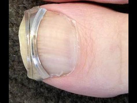 straighten ingrown toenails attach  spring clip