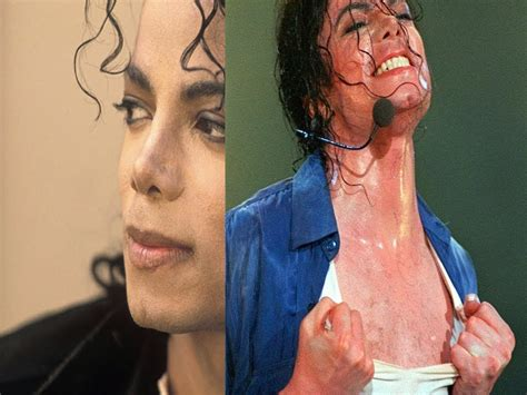 Vitiligo (beauty & Grooming Guru)