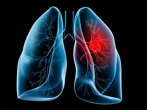 lung cancer  asbestos symptoms treatment