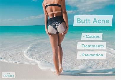 Butt Pimples Rid Acne Woman Mdacne Bikini