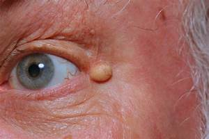 Epidermoid Cyst  Infected
