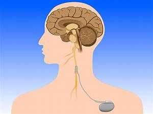 Vagal Nerve Stimulation Encouraging In Stroke Rehab