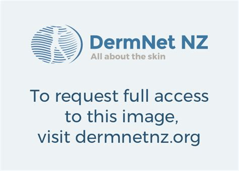 drug induced photosensitivity dermnet  zealand