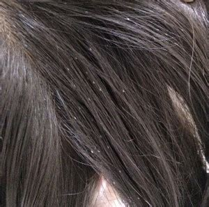 what color is lice lice how to identify lice and nits