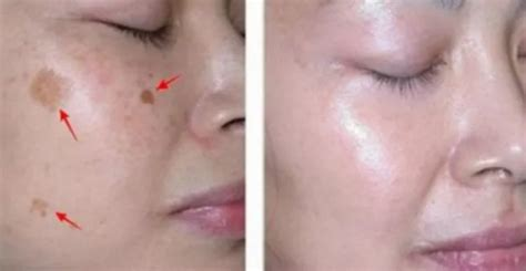 Removal Of Face Spots In Just 3 Nights