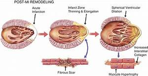 Biomarkers of Necrosis and Myocardial Remodeling ...