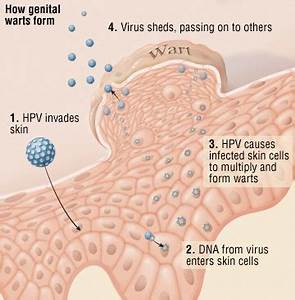 Genital Warts Guide: Causes, Symptoms and Treatment Options