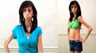 Skinniest Woman In The World Eats Every 20 Minutes - Lizzie Velasquez ...