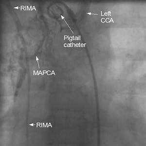 Tetralogy of Fallot (TOF) - Cardiophile MD